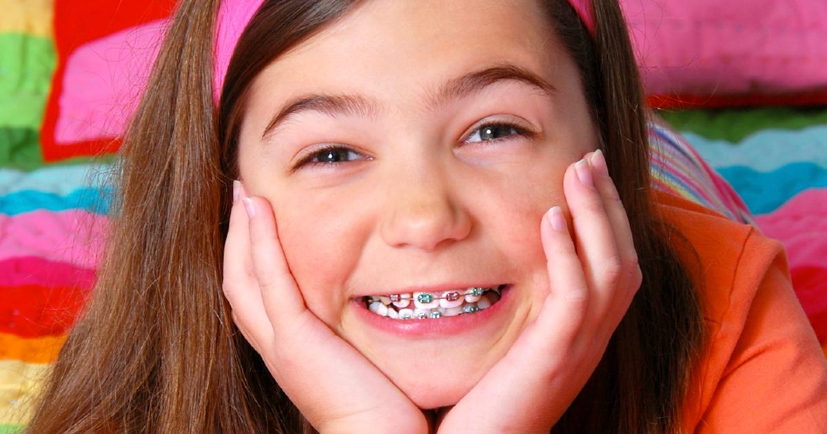 ms-blog_braces-and-dental-problems