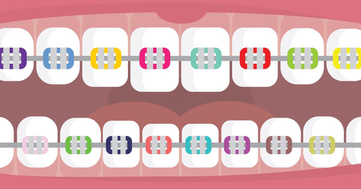 ms-blog_braces-orthodontics_mouth-braces